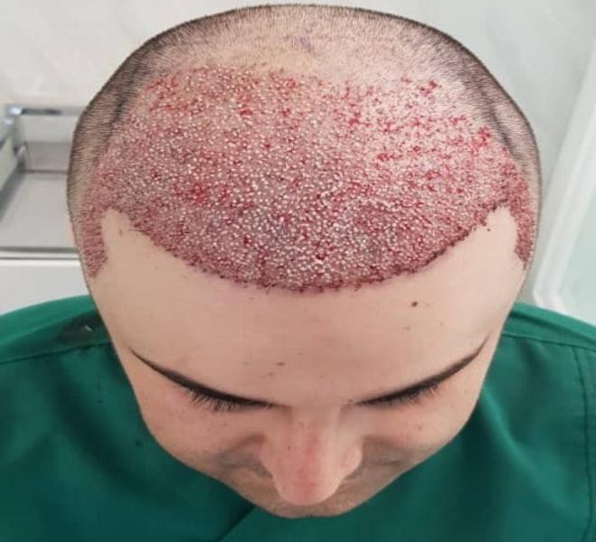 کاشت مو با استفاده از هیپنوتیزم در مشهد انجام شد