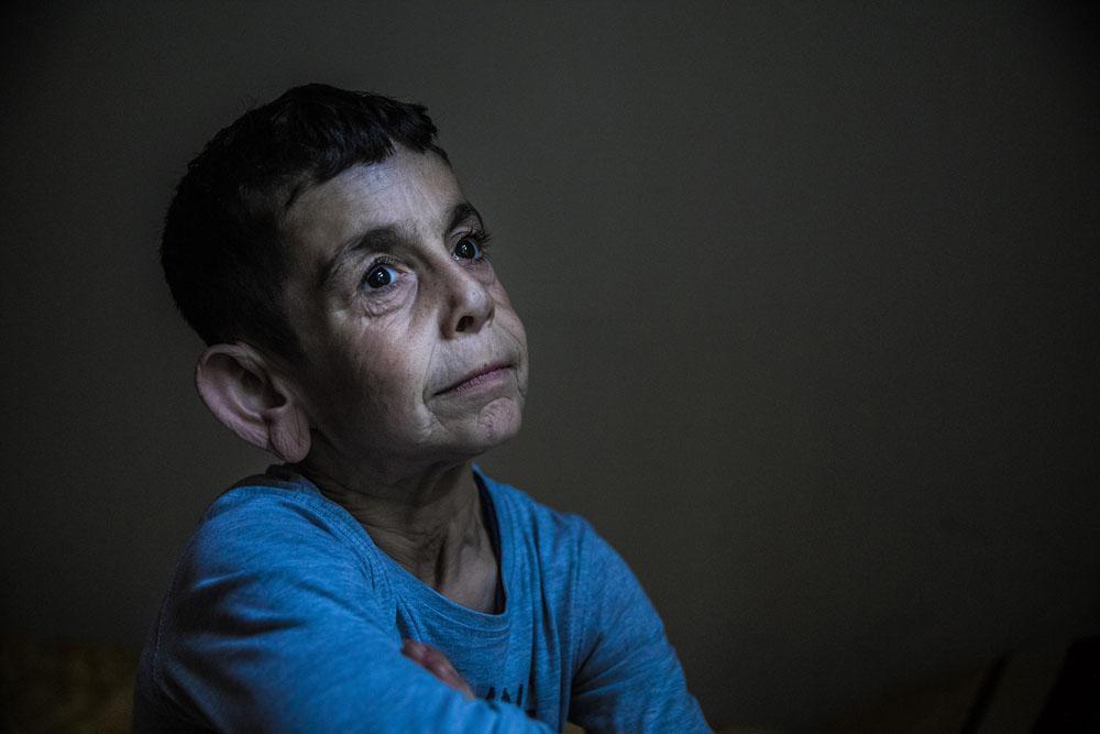 چشم هایش - عکس بی نظیر مارلِنا والدهاوزن از پیرمرد خردسال سوری